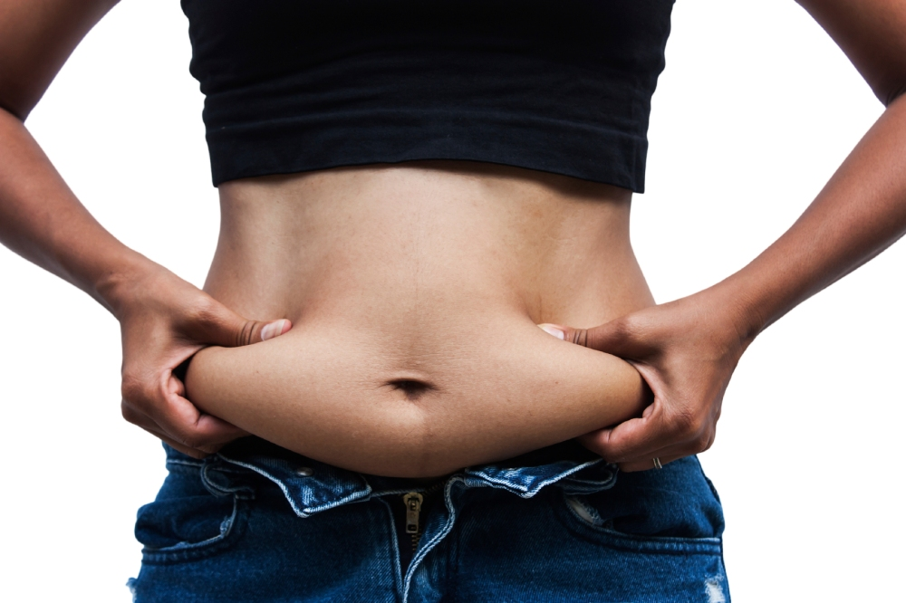 Women with fat belly and stretch marks,front Side